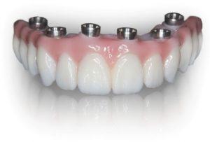 Prettau Zirconia teeth tomorrow